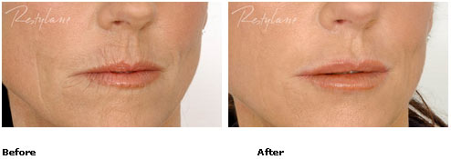 Restylane - Lips - Before & After Pictures