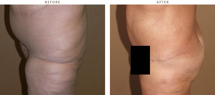 Brazilian Buttock Lift - Before and After Pictures